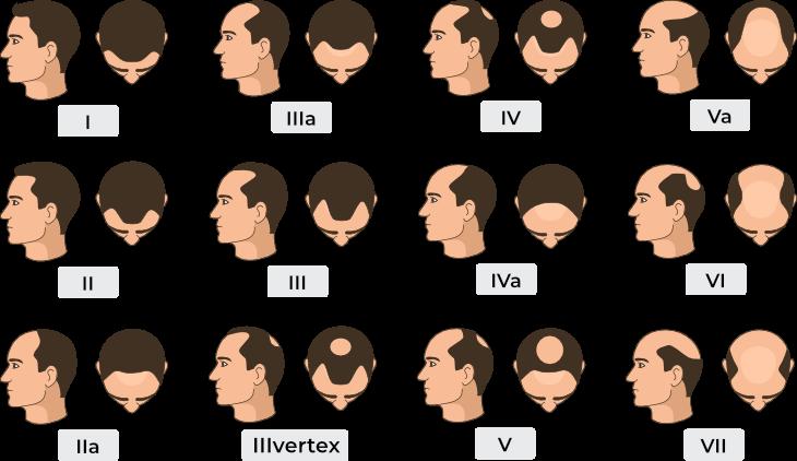 Trapianto di capelli: tecniche, risultati, prezzo
